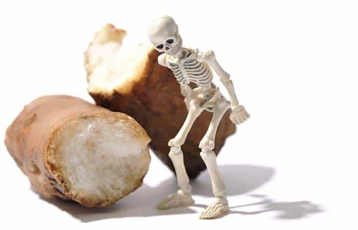 骨密度の低さのイメージ